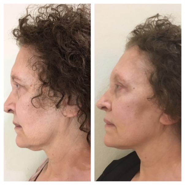 Antes y después de tratamiento de hilos tensores.