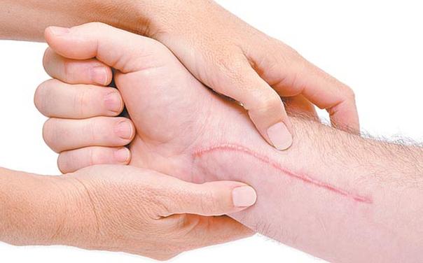 Examinar la cicatriz