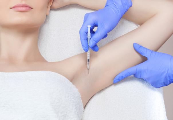 Tratamientos para la hiperhidrosis