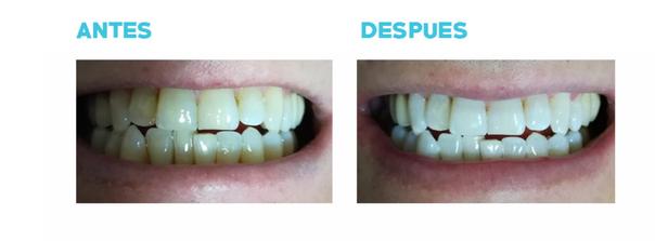Antes y Despues del blanqueamiento dental
