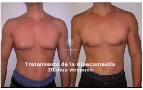 Los resultados de la ginecomastia