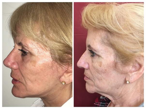 Pacientes aptos para tratamiento de rejuvenecimiento facial.