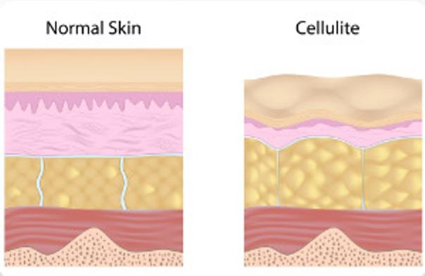 Las causas de la celulitis