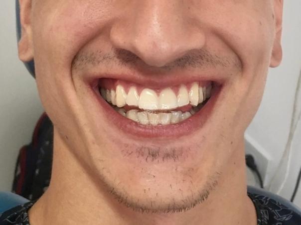 Paciente de periodoncia