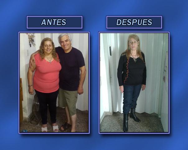 Antes y después de un régimen para perder de peso.