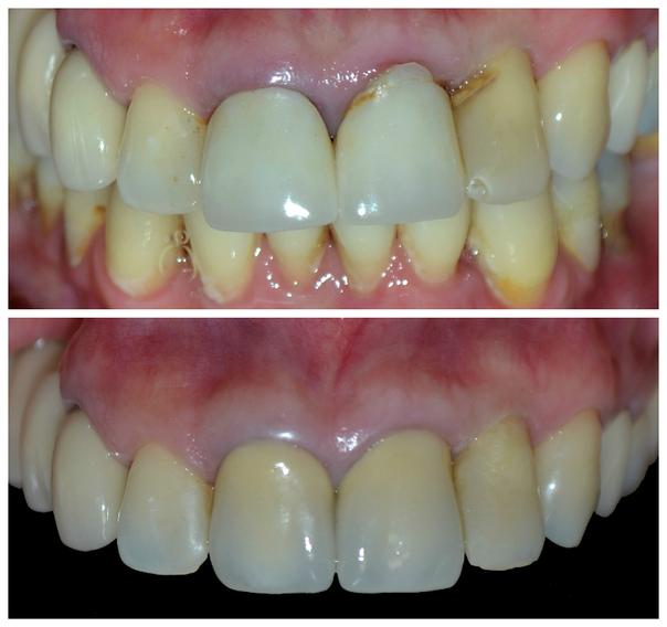 Paciente apto para uso de prótesis dental.