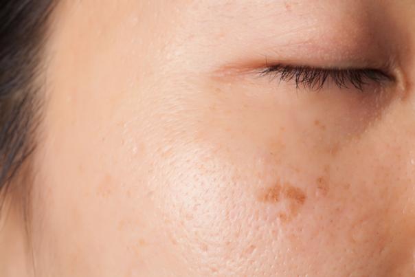 Tipos de manchas en la piel.