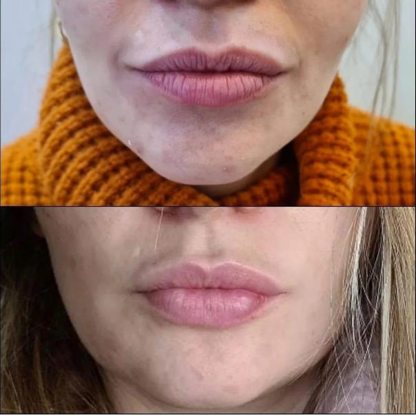 Tratamiento de rejuvenecimiento para labios