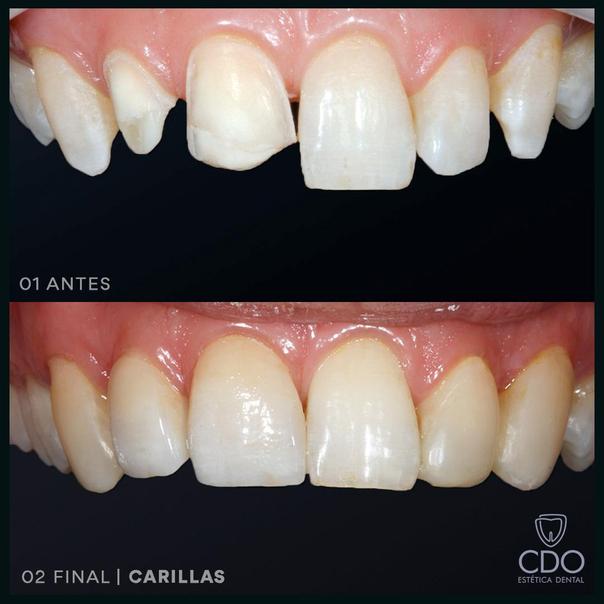 Carillas dentales, antes y después