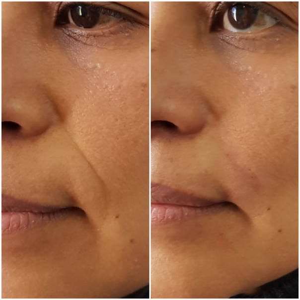 Tratamientos de rejuvenecimiento facial.