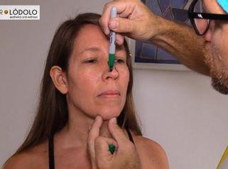 Doctor Lodólo - Rinoplastia , Intervención