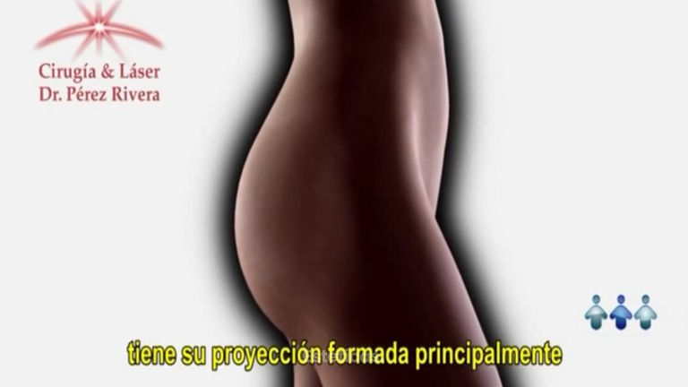 Prótesis de glúteos
