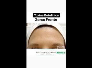 Botox - Dra. Julieta Settecasi