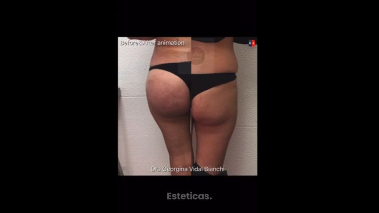 Aumento glúteos - Dra. Georgina Vidal Bianchi
