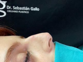 Rinoplastía - Dr. Sebastian Gallo