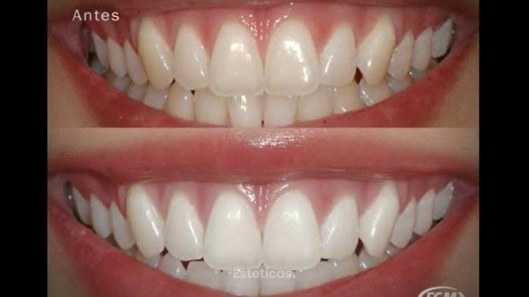 Accion del calcio en el blanqueamiento dental profesional