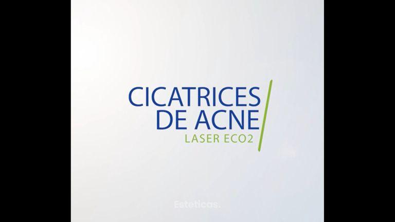 Cicatrices de acné Laser eCO2