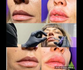 Relleno de labios