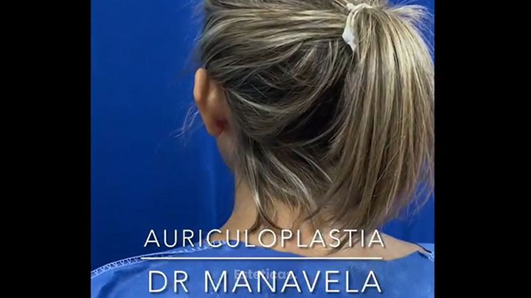 Auriculoplastia - Dr. Emmanuel Manavela Chiapero