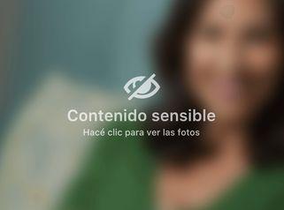 Hilos tensores faciales - Dra. Adriana Ratto