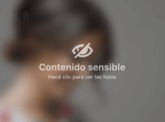 MELA - Mini lipoaspiración ambulatoria - Dra. Paula Granero