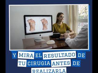 Resultados de tu cirugía antes de realizarla