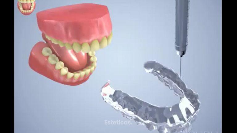 Blanchiment des dents DayWhite _ NiteWhite