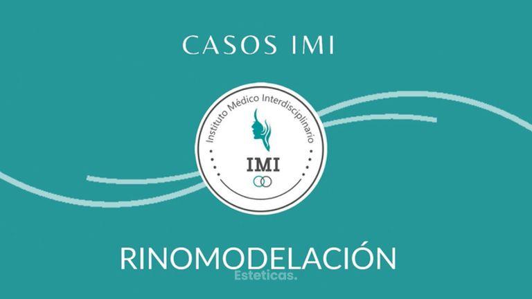 Rinomodelación - Dra María José Lukacs y Dr Jose Luis Ava