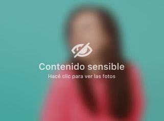 Dra. Hebe Blanco - Difusión XVIII Congreso Argentino de Quemaduras