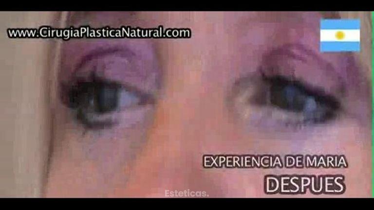 Cirugia de Parpados Dr. Marcelo Bernstein