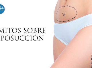 5 Mitos de la Liposucción - Dr. Honorio Labaronnie