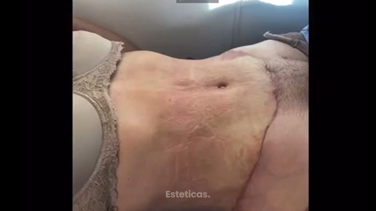 Abdominoplastia - Dr. Fabian Vargas Carrasco