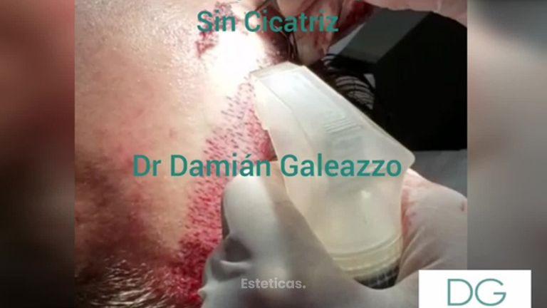 Microimplante Capilar - Sin Cicatriz