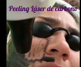 Peeling Láser de carbono