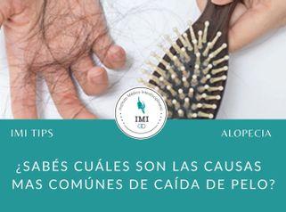 Tipos de Alopecia - Dra María José Lukacs y Dr Jose Luis Ava