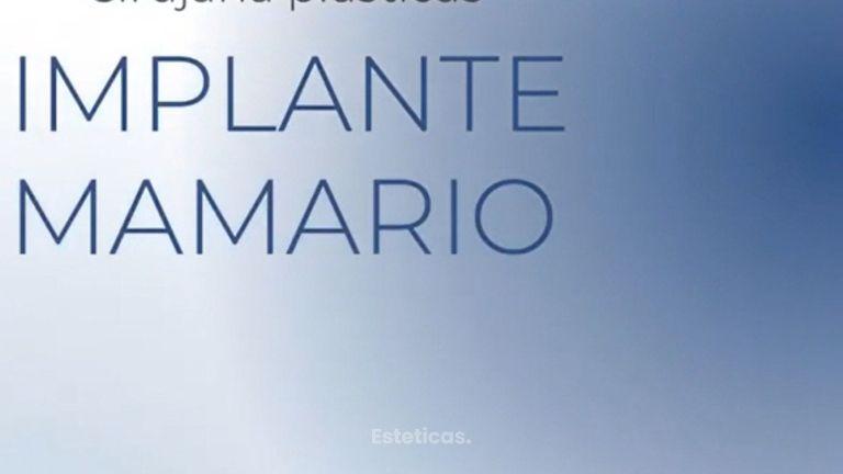 Aumento Mamas - Dra. Paula Granero