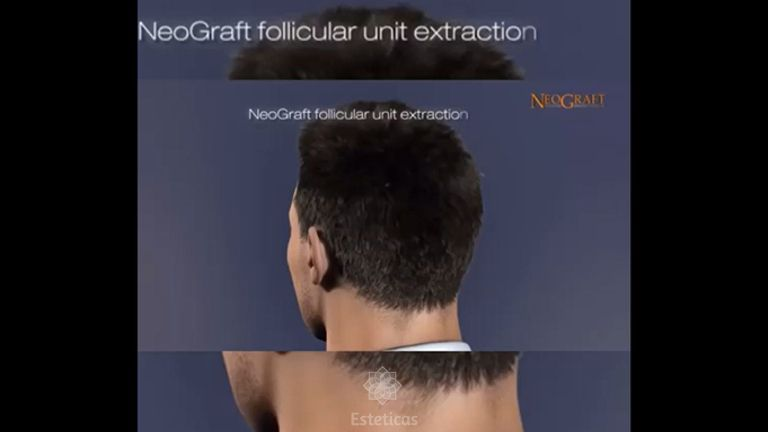 Implante capilar - Dr. Franco Gomez