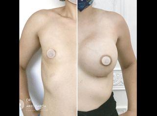 Aumento de mamas - Dr. Ariel Ignacio García