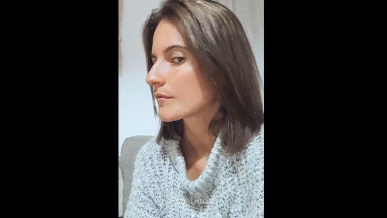 Rinoplastia - Dr. Zuccardi Santiago