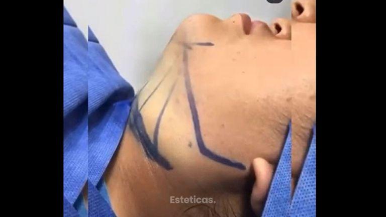 Liposucción de papada - Dr. Franco Gomez
