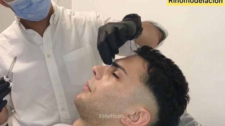 Rinomodelación - Dr. Fernando Glaria
