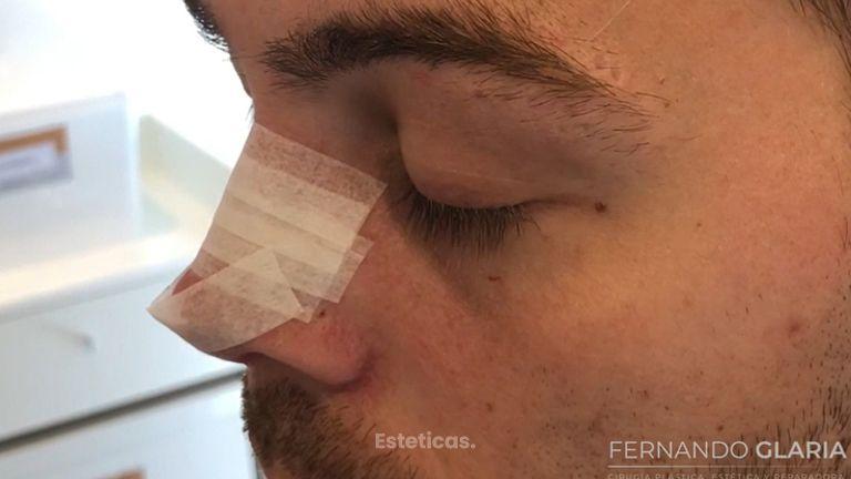 Colocación de las cintas en una rinoplastia - Dr. Fernando Glaria
