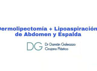 Dermolipectomía + Lipoaspiración de espalda y abdomen