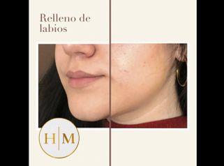 Relleno de labios - Dr. Héctor Martínez Gomez