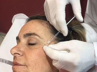 Botox - Dr. Víctor Armesto