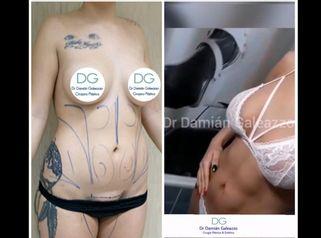 Liposucción - Dr. Damián Galeazzo