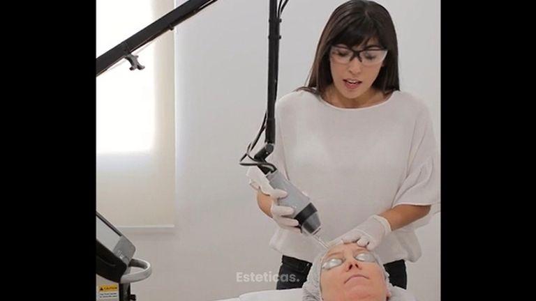 Rejuvenecimiento facial - Instituto Médico Rodriguez Saa