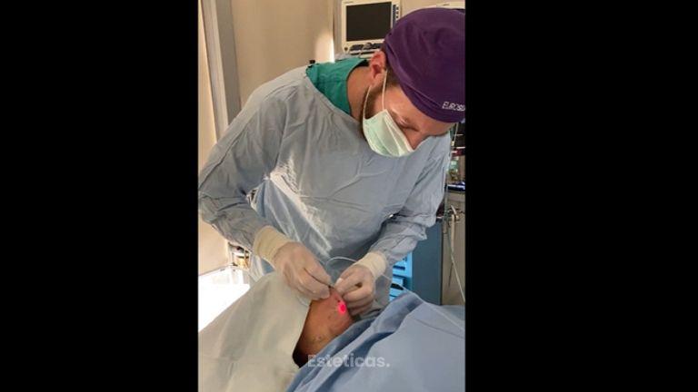 Liposucción de papada - Dr. Emmanuel Manavela Chiapero