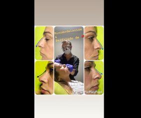Relleno de labios y rinomodelación