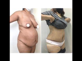 Abdominoplastia - Dr. Ariel Ignacio García